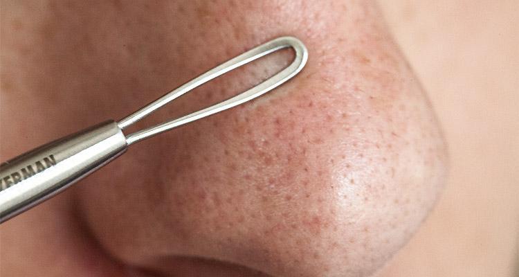 La chasse aux points noirs pour une peau saine et nette